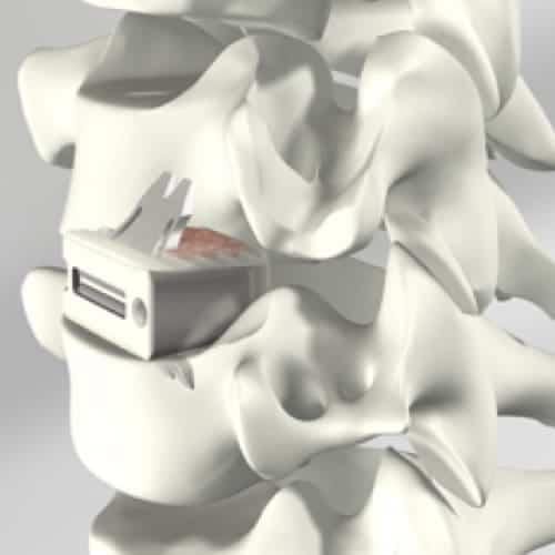 arthrodese cervicale complication arthrodese cervicale avec pose de cage chirurgie du rachis espace francilien du rachis clinique du rachis versailles paris 1
