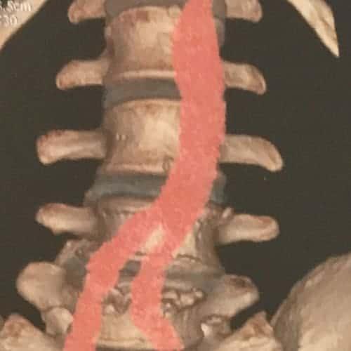 arthrodese lombaire par voie anterieure arthrodese lombaire voie anterieure pourcentage de reussite chirurgie du rachis espace francilien du rachis clinique du rachis versailles paris 9