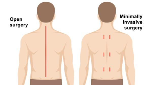 arthrodese lombaire par voie posterieure arthrodese lombaire posterieure chirurgie du rachis espace francilien du rachis clinique du rachis versailles paris 6