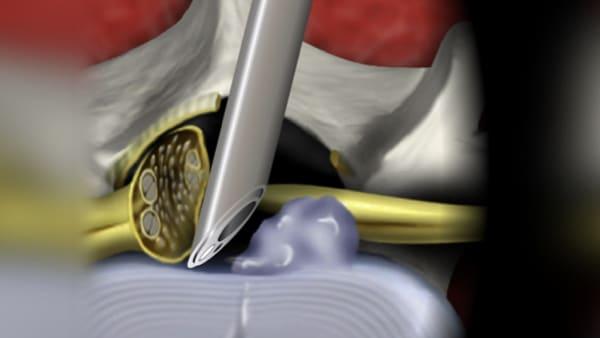 chirurgie d une hernie discale lombaire symptomes hernie discale lombaire operation chirurgie du rachis espace francilien du rachis clinique du rachis versailles paris