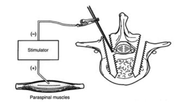 chirurgie du rachis neurostimulation medullaire probleme de dos espace francilien du rachis clinique du rachis versailles paris 3