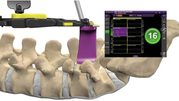chirurgie du rachis neurostimulation medullaire probleme de dos espace francilien du rachis clinique du rachis versailles paris