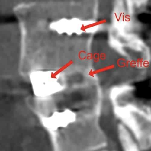chirurgie mini invasive du canal lombaire etroit la chirurgie mini invasive hernie discale espace francilien du rachis clinique du rachis versailles paris 2