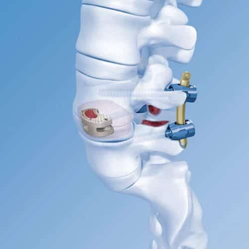 chirurgie mini invasive du canal lombaire etroit la chirurgie mini invasive hernie discale espace francilien du rachis clinique du rachis versailles paris 5