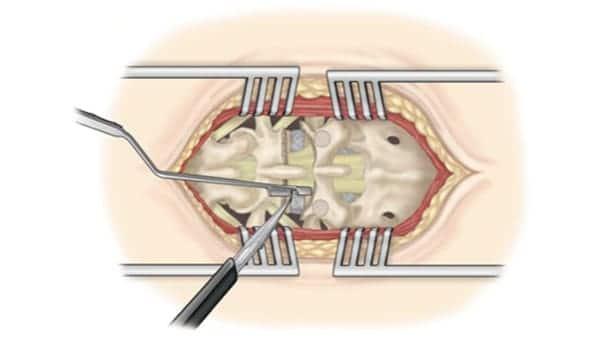 chirurgie mini invasive du canal lombaire etroit la chirurgie mini invasive hernie discale espace francilien du rachis clinique du rachis versailles paris