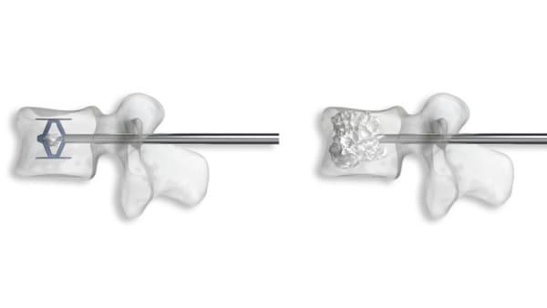 cyphoplastie par ballonnets kyphoplastie vertebroplastie kyphoplastie lombaire chirurgie du rachis espace francilien du rachis clinique du rachis versailles paris 4