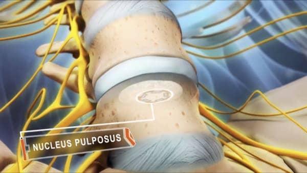 hernie discale operation hernie discale lombaire traitement hernie discale traitement hernie discale l5 s1 espace francilien du rachis clinique du rachis versailles paris 2