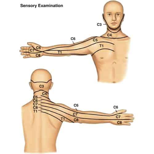hernie discale symptome hernie discale l5 s1 hernie discale operation hernie discale cervicale espace francilien du rachis clinique du rachis versailles paris 1