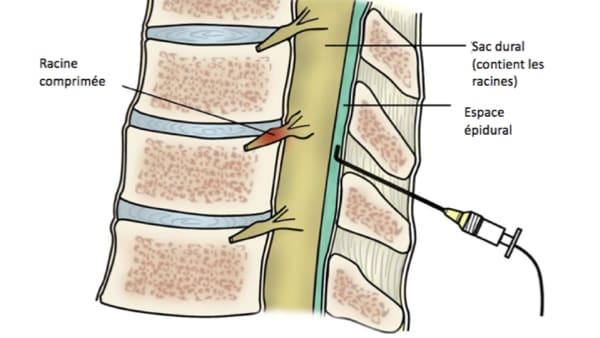 infiltration dos lombaire infiltration du dos infiltration rachis lombaire chirurgie du rachis espace francilien du rachis clinique du rachis versailles paris 1