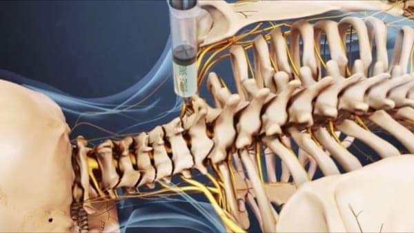 infiltration nevralgie cervico brachiale traitement nevralgie cervico brachial nevralgie cervico brachiale cause espace francilien du rachis clinique du rachis versailles paris