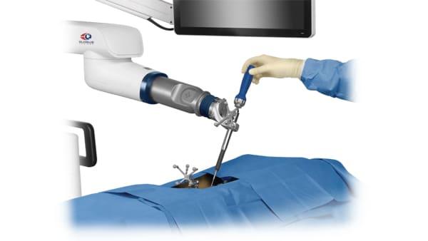 navigation 3d rachidienne operation du rachis lombaire operation du rachis cervical c6 c7 espace francilien du rachis clinique du rachis versailles paris 6