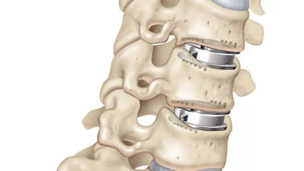 prothese discale cervicale remboursement prothese discale avis chirurgie du rachis espace francilien du rachis clinique du rachis versailles paris