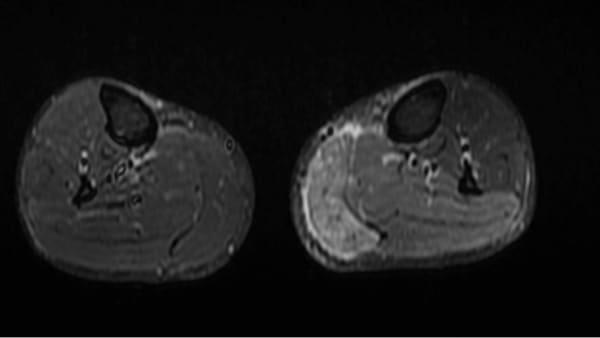 irm sciatique traitement la sciatique dos cruralgie symptomes une cruralgie traitements cruralgie que faire espace francilien du rachis clinique du rachis versailles paris 4