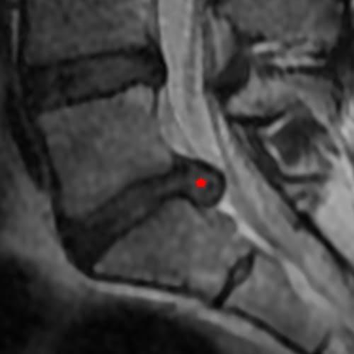 sciatique traitement la sciatique dos cruralgie symptomes une cruralgie traitements cruralgie que faire espace francilien du rachis clinique du rachis versailles paris 7