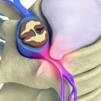 sciatique traitement la sciatique dos cruralgie symptomes une cruralgie traitements cruralgie que faire espace francilien du rachis clinique du rachis versailles paris 9