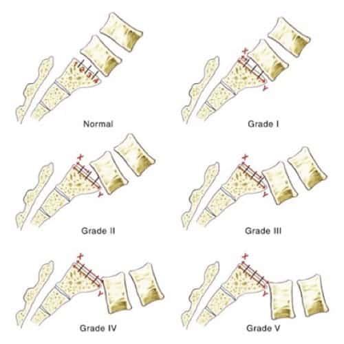 spondylolisthesis par lyse isthmique bilaterale spondylolisthesistraitement espace francilien du rachis clinique du rachis versailles paris 4