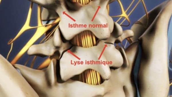 spondylolisthesis par lyse isthmique bilaterale spondylolisthesistraitement espace francilien du rachis clinique du rachis versailles paris